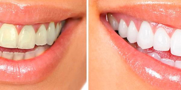3 Domowe Sposoby na Wybielanie Zębów